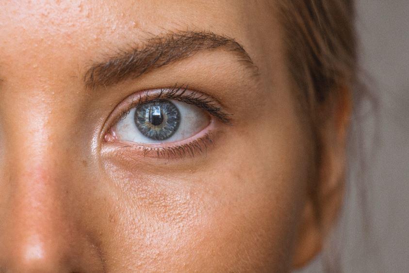 Cara menghilangkan bruntusan di wajah - Photo by Amanda Dalbjörn on Unsplash